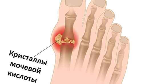 Кристаллы мочевой кислоты в пальце