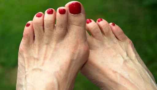 Подагра на ноге большого пальца: в чем опасность простого недуга