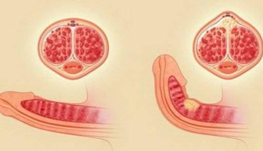 Как понять – перелом или болезнь Пейрони?