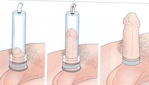 процесс вакуумной помпы для члена